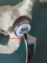 protesi-femorale